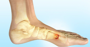 Болезнь Дойчлендера: механизм развития болезни и признаки маршевой стопы, физиотерапия и массаж, способы терапии и прогноз
