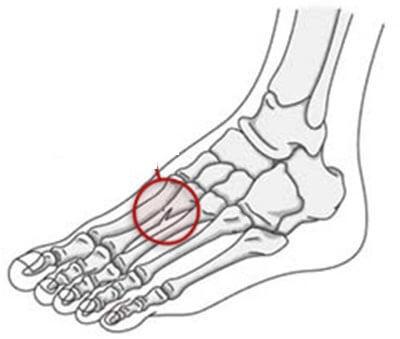 Перелом стопы: классификация и причины повреждения, характерные симптомы и методы диагностики, первая помощь и способы лечения, реабилитация и сроки восстановления