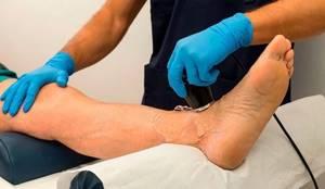 Периостит голени: причины, симптомы и способы лечения народными и медицинскими средствами, профилактика и советы врачей