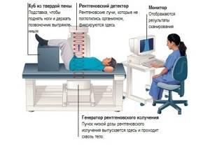 Дебридмент сустава: показания к диагностике, как подготовиться к процедуре, особенности проведения обследования, расшифровка результатов