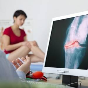 Артрогрипоз: разновидности заболевания и признаки возникновения патологии, диагностика и лечебные мероприятия, классификация болезни