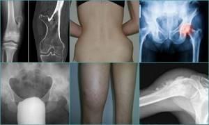 Остеохондрома: что такое, причины возникновения новообразования, симптомы, диагностика и лечение