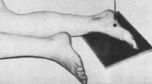 Рентген стопы: разновидности методов и показания для проведения диагностики, какие патологии выявляет, основные правила выполнения и расшифровка результатов