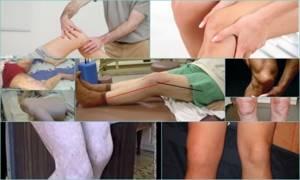 Контрактура коленного сустава: причины развития и классификация, симптомы при разных формах патологии, диагностика, методы лечения и реабилитации