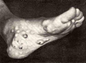 Синдром Маффуччи: признаки возникновения и описание заболевания, прогноз и опасность патологии, диагностика и лечебные методы