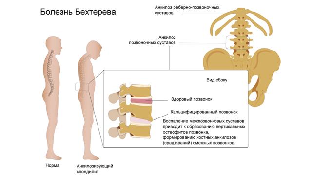 Болезнь Бехтерева: характеристика заболевания и признаки патологии, возможные осложнения и препараты для терапии и физические упражнения
