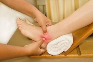 Йод для суставов: применяем растирки, мази и ванны для лечения и профилактики, показания и меры предосторожности, рецепты эффективных средств народной медицины