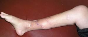 Гематогенный остеомиелит: описание и классификация заболевания, причины и симптомы воспаления, методы диагностики и лечения, возможные осложнения и меры профилактики