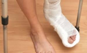 Перелом плюсневой кости стопы: причины и симптомы травмы, правила оказания первой помощи, диагностика, распространенные осложнения, методы лечения и восстановления