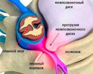 Лечение протрузии поясничных дисков травами: причины, симптомы, стадии развития и диагностика патологии, показания к применению фитотерапии и других рецептов народной медицины
