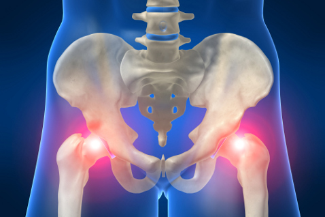 Артрит тазобедренного сустава: причины и типы заболевания, диагностика и способы терапии, первая помощь и профилактика, народные советы