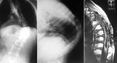 Кифосколиоз: признаки и клиническая картина, факторы риска, способы диагностики и терапии болезни, показания для операции и профилактические мероприятия