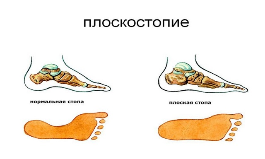 Артроз пальцев ног: причины патологии, механизм развития и симптомы, лечение аптечными и народными средствами, методы мануальной и физиотерапии, профилактика и прогноз