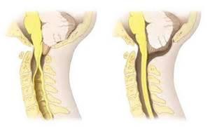 Сирингомиелия: причины, симптомы, диагностика, медикаментозные и хирургические методы лечения, прогноз докторов и профилактика