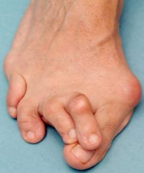 Остеохондропатия пяточной кости: причины и признаки болезни, диагностика и лечебные методы, прогноз заболевания и стадии