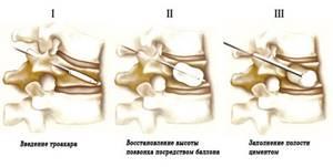 Кифопластика позвоночника: восстановление поврежденных позвонков, подготовка, показания и противопоказания к процедуре, особенности проведения и реабилитации