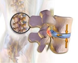 Дискогенная радикулопатия: причины и симптомы заболевания, методы диагностики и лечение медикаментозной терапией, в каких случаях показана операция, возможные осложнения и профилактика