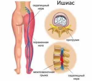 Защемление нерва в пояснице: медикаментозная терапия и легкие упражнения, способы купирования воспаления и народные рецепты, полезные рекомендации