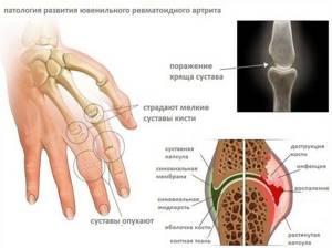 Ревматоидный полиартрит: причины и признаки развития недуга, медикаментозные и альтернативные методы терапии, диагностика болезни