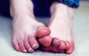 Немеют пальцы на ногах: основные причины, диагностика заболевания, лечебные меры, аптечные и народные средства, профилактика
