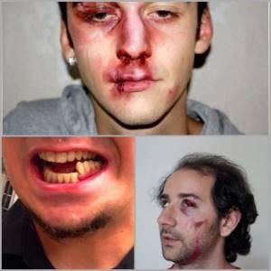 Перелом челюсти: классификация и причины травмы, внешние признаки и основные симптомы, первая помощь пострадавшему и методы лечения, возможные осложнения