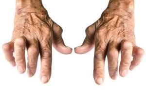 Аутоиммунный ревматоидный артрит: особенности и типы патологии, факторы риска и причины развития, симптомы и способы диагностики, методы лечения и прогноз для жизни