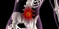 Коксартроз тазобедренного сустава: причины и симптомы заболевания, методы диагностики, лечение и профилактика народными средствами в домашних условиях