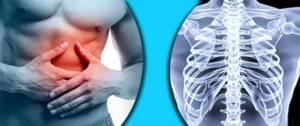 Ушиб ребер: основные симптомы и диагностические мероприятия, рекомендации по оказанию первой помощи, современные и народные методы лечения, реабилитация и прогноз