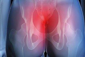 Боль в копчике при беременности: признаки появления дискомфорта и характеристика болевых ощущений, возможные патологии и способы терапии