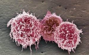 Остеобластокластома: причины появления и классификация опухоли, основные симптомы и диагностика новообразования, тактика лечения и вероятность рецидива, прогноз для жизни