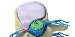 Протрузия дисков шейного отдела позвоночника: что это такое, способы лечения и диагностики, симптомы и причины заболевания, провоцирующие факторы