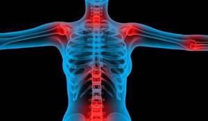 Лечим суставы препаратом Хонда: состав и формы выпуска, показания и противопоказания к применению, инструкция и стоимость лекарства