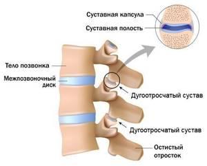 Боль в ключице: основные причины возникновения болевых ощущений, как избавиться народными и медицинскими средствами, профилактика и как лечить