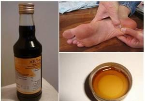 Применение медицинской желчи при косточках на ногах: целебные свойства, инструкция по использованию и противопоказания, правила лечения