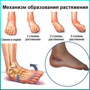 Растяжение связок стопы: причины и признаки, симптомы, первая помощь и лечение, восстановление после операции, рекомендации хирургов