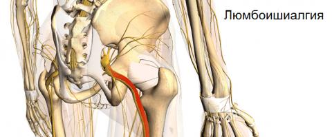 Люмбоишиалгия: клиническая картина и симптомы патологии, методы терапии, последствия и осложнения, способы профилактики и прогноз