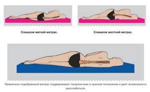Выбираем ортопедический матрас при остеохондрозе: виды и характеристики, оптимальная жесткость и тип наполнителя, рекомендации в зависимости от степени заболевания, возраста и веса пациента