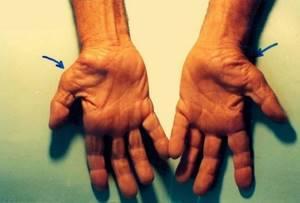 Туннельный синдром запястья: причины патологии, 7 методов лечения от консервативных до операции, специальные упражнения для запястья