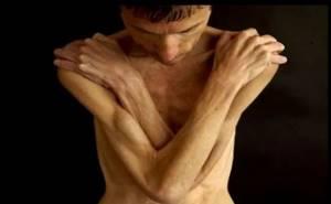 Мышечная гипотония: классификация, факторы риска и причины развития заболевания, особенности диагностики и специфические симптомы, лечение и профилактика патологии