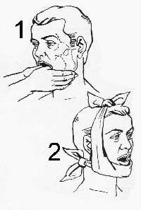 Вывих челюсти: алгоритм действий, первая помощь, лечение, использование фиксирующих повязок, реабилитация и восстановление в домашних условиях