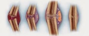 Консолидированный перелом: что такое и чем лечить, стадии заживления, сроки срастания, ускорение восстановительного периода, медицинские и народные средства