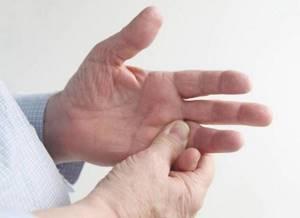 Лечение недифференцированного артрита: причины и симптомы заболевания, методы диагностики, показания к применению медикаментозных препаратов и народных средств