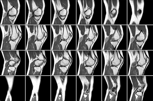 МРТ коленного сустава: показания и противопоказания к проведению диагностики, подготовка и процесс проведения процедуры, информативность и стоимость методики