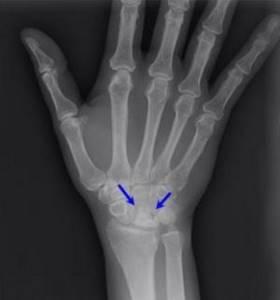 Болезнь Кинбека: причины и признаки возникновения болезни, диагностика и лечебная тактика, остеотомическая коррекция и прогноз