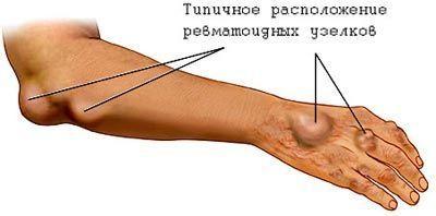 Ревматизм суставов: что это такое, причины и классификация, признаки развития, диагностика и лечение заболевания