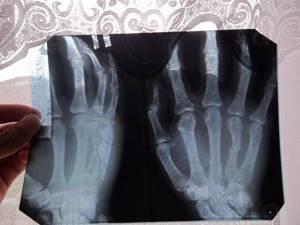 Перелом мизинца на руке: классификация и причины повреждения, специфические симптомы и правила оказания первой помощи, методы лечения и реабилитация, сроки восстановления