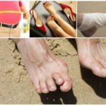Воспаление косточки на большом пальце ноги: причины, симптомы, диагностика и лечение заболевания медикаментозными средствами, ортопедическими комплексами и мануальной терапией