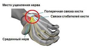 Туннельный синдром запястья: прогноз и профилактика синдрома, симптомы и лечение заболевания, профилактика