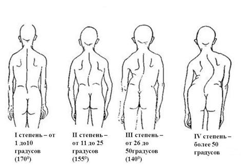 Диспластический сколиоз: симптомы и признаки патологии, клиническая картина и особенности терапии, характеристика проблемы и диагностические мероприятия
