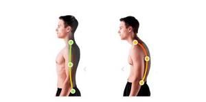 Круглая спина: основные причины возникновения, сопутствующие симптомы, методы лечения у детей и взрослых, рекомендованные упражнения для исправления и профилактики